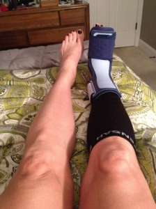plantar fasciitis brace over a compression sleeve taken earlier in the year